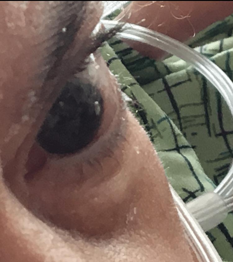 Anna Eye VHC